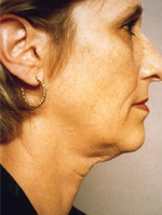 facial exercises before and after photos