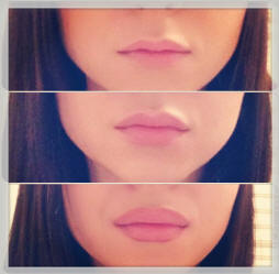 before and after lip plumping
