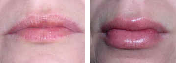 luscious lips before and after