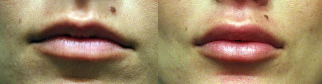 citizenofbeautyBefore_After_Lips-1024x270
