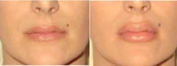luscious lips before and after photo of Allison