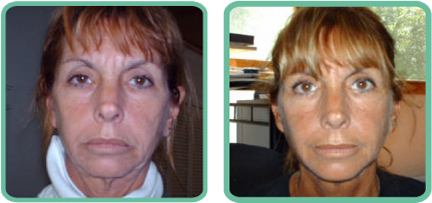facial exercises before and after photos crop