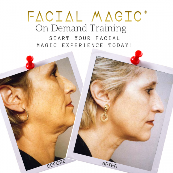 Facial Magic Before and After