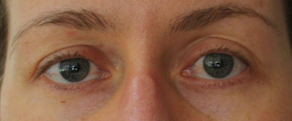 dempeaux hooded eye after facial exercises