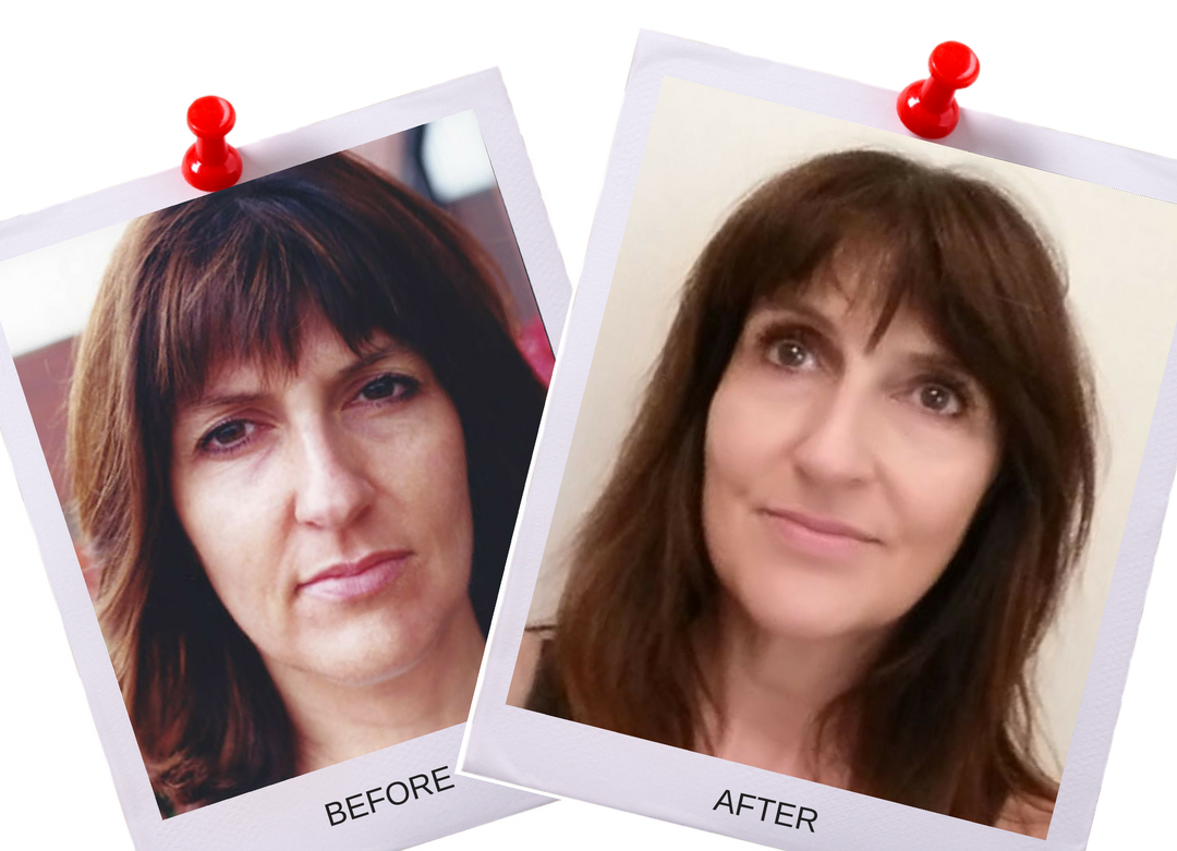 Facial Magic Before and After kathryn