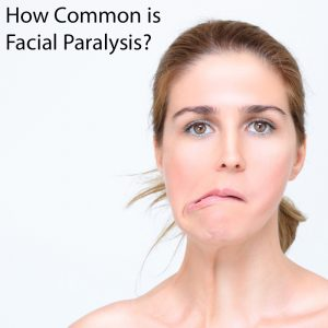 how common is facial paralysis