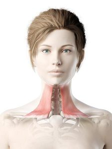 3d rendered medically accurate illustration of a womans platysma
